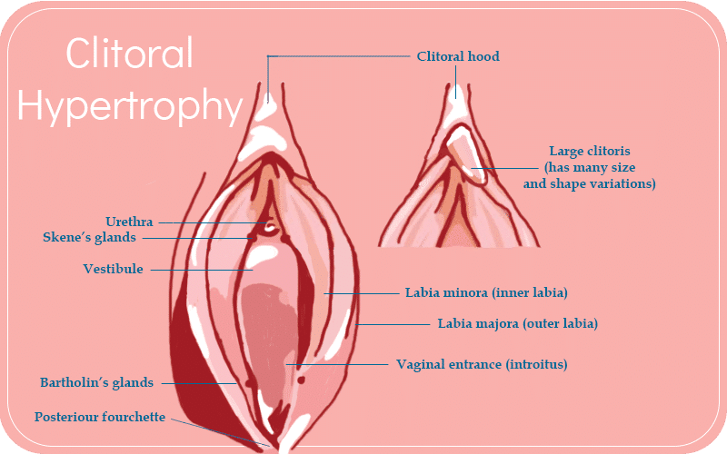 vagina Clitoridectomy